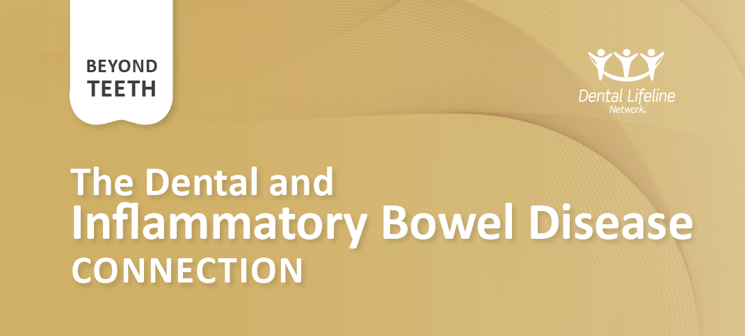 Dental Connections to Inflammatory Bowel Disease
